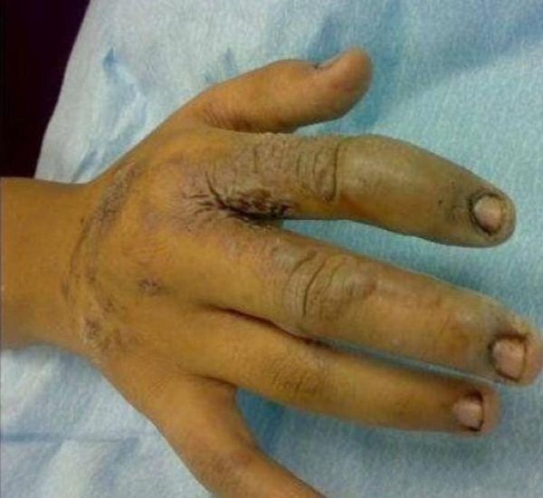 Un barbat din China a ramas diform dupa ce un iPhone i-a explodat in mana