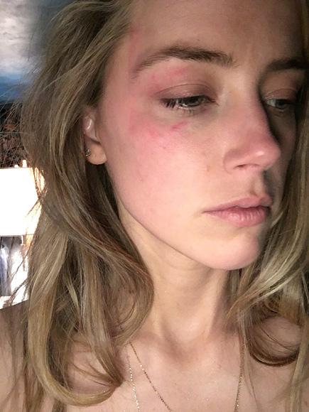 Amber Heard a cerut ordin de restrictie pentru Johnny Depp. Actrita sustine ca a fost batuta de acesta