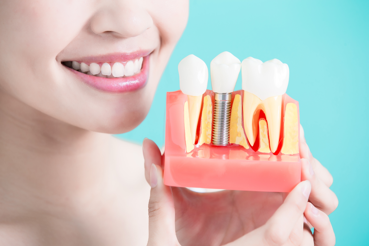 Studiu de caz: Implantul dentar - soluția PREFERATĂ de români pentru problemele dentare grave