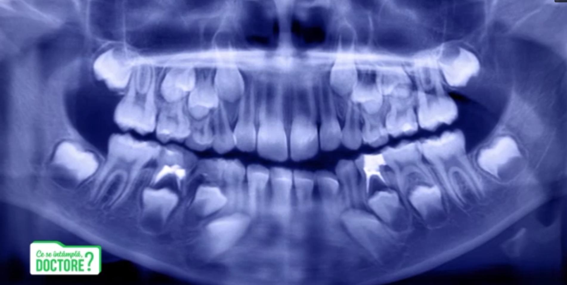 CSID. Care este cel mai eficient tratament pentru cariile apărute la dinții de lapte