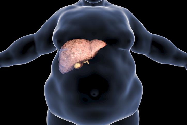 CSID. Cum ajutăm ficatul să se vindece. Sfaturi pentru cei care consumă alimente grase