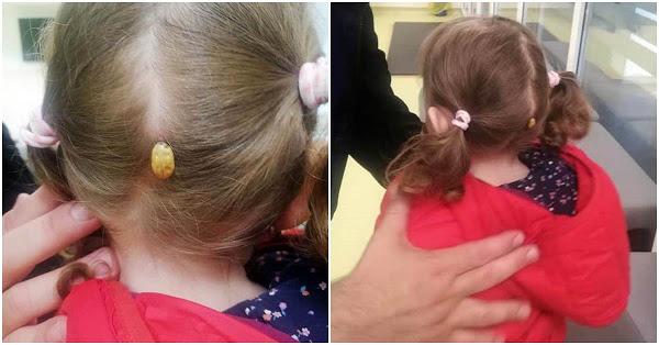 Ce i-a apărut unei fetițe în spatele capului, după ce s-a jucat într-un parc din Suceava