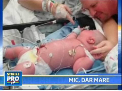 Uite-l pe Axel, bebelusul de 7 kilograme nascut... prematur!