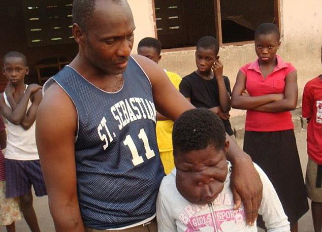 Fetita de 13 ani din Ghana cu o diformitate faciala extrema va fi operata. FOTO