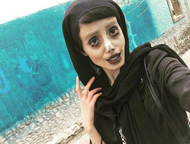 S-a operat ca să arate ca Angelina Jolie, dar fanii spun că aduce cu un zombie
