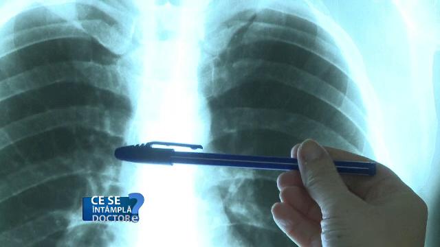 Investigația care detectează cele mai grave boli respiratorii
