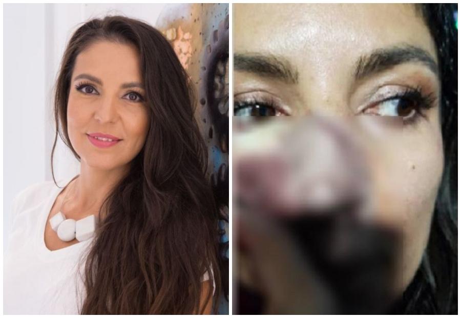 """Mărturia Cristinei Joia, de la """"Visuri la cheie"""", lovită în plină figură de o femeie: """"Am sunat singură la ambulanță"""""""