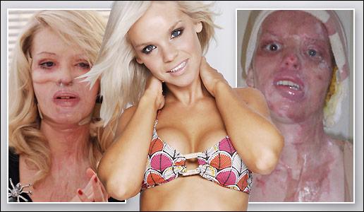Violata si desfigurata cu acid sulfuric! Vezi galeria foto!