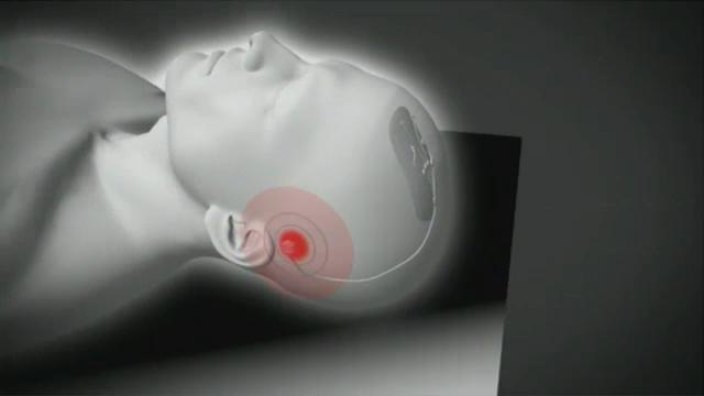 Britanicii au creat un implant high-tech care ar putea opri evolutia bolii Parkinson