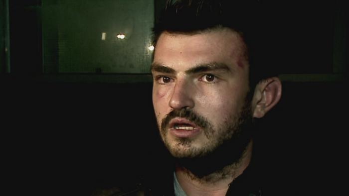 Doi tineri din Constanta, atacati de niste presupusi traficanti de droguri. MARTURIA celor doua victime