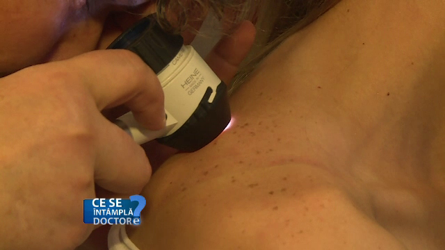 Ce poate insemna aparitia unor puncte rosii pe piele. Motivul pentru care trebuie neaparat sa mergeti la dermatolog