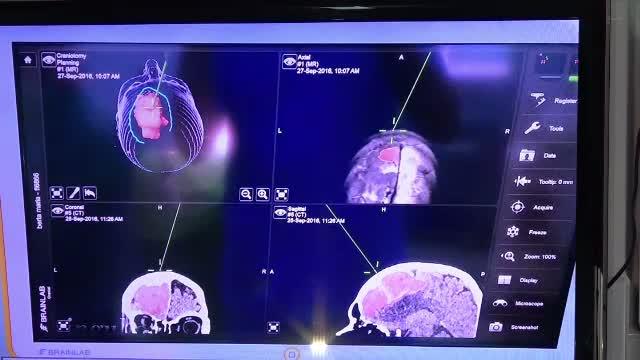 Tehnologia preluata din aviata militara salveaza vieti si in Romania. Cinci pacienti cu tumori pe creier, operati cu succes