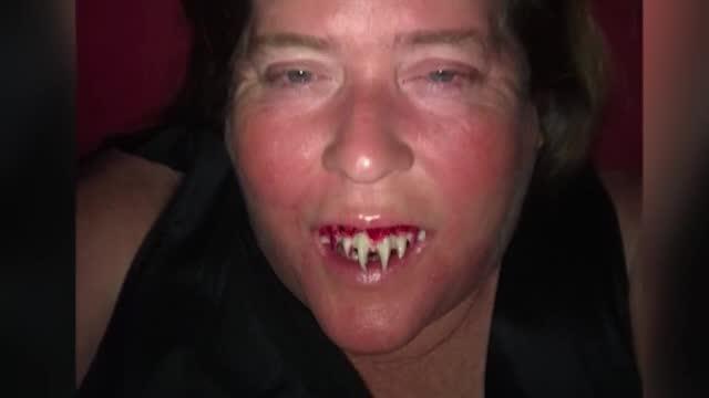 """Și-a lipit dinți de zombie de Halloween, dar după petrecere a avut un șoc: """"Nu mai fac niciodată"""""""