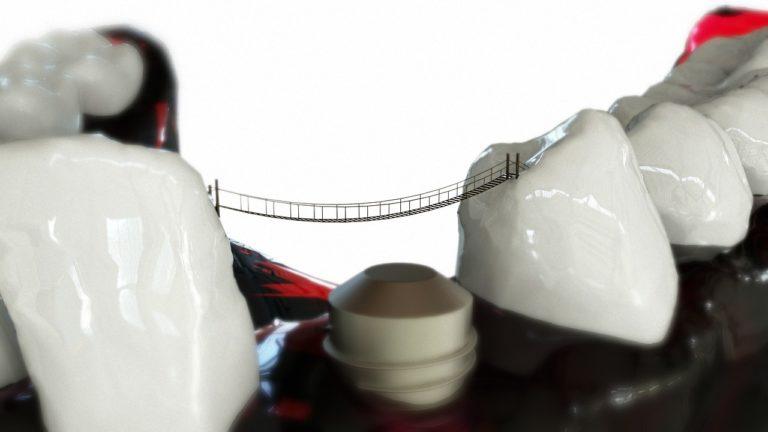 (P) Mitul implantului dentar si consecintele sale comportamentale