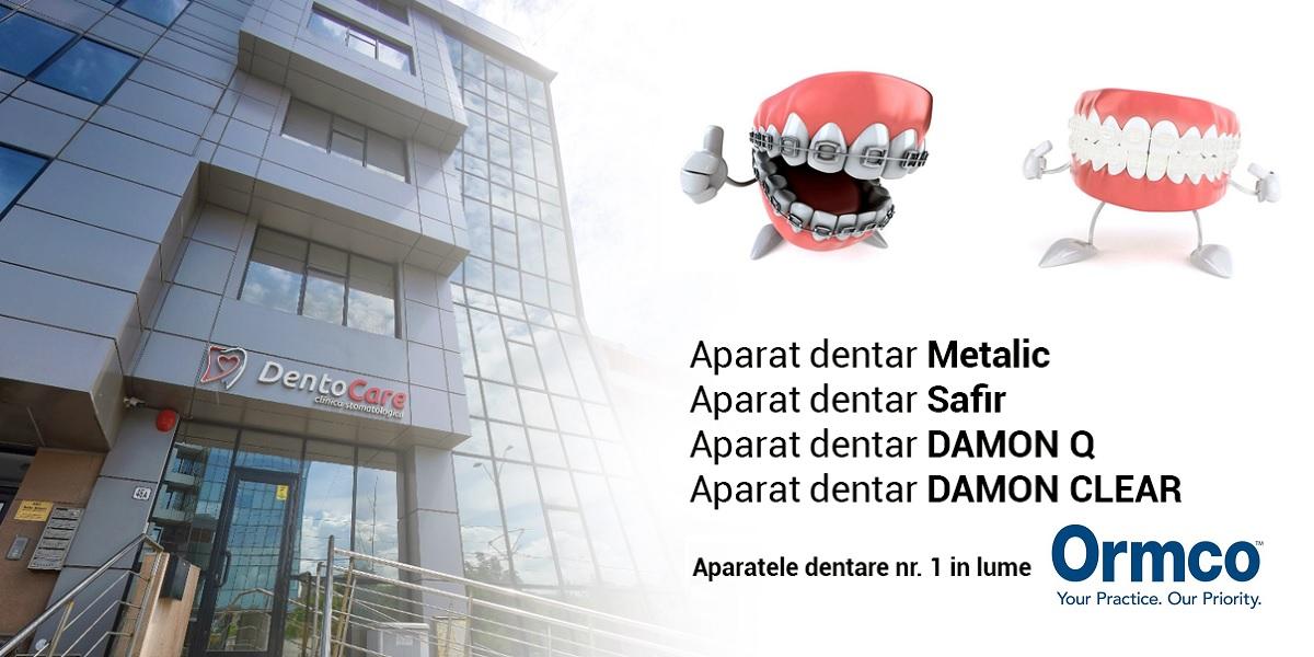 (P) Află ce tip de aparat dentar ți se potrivește