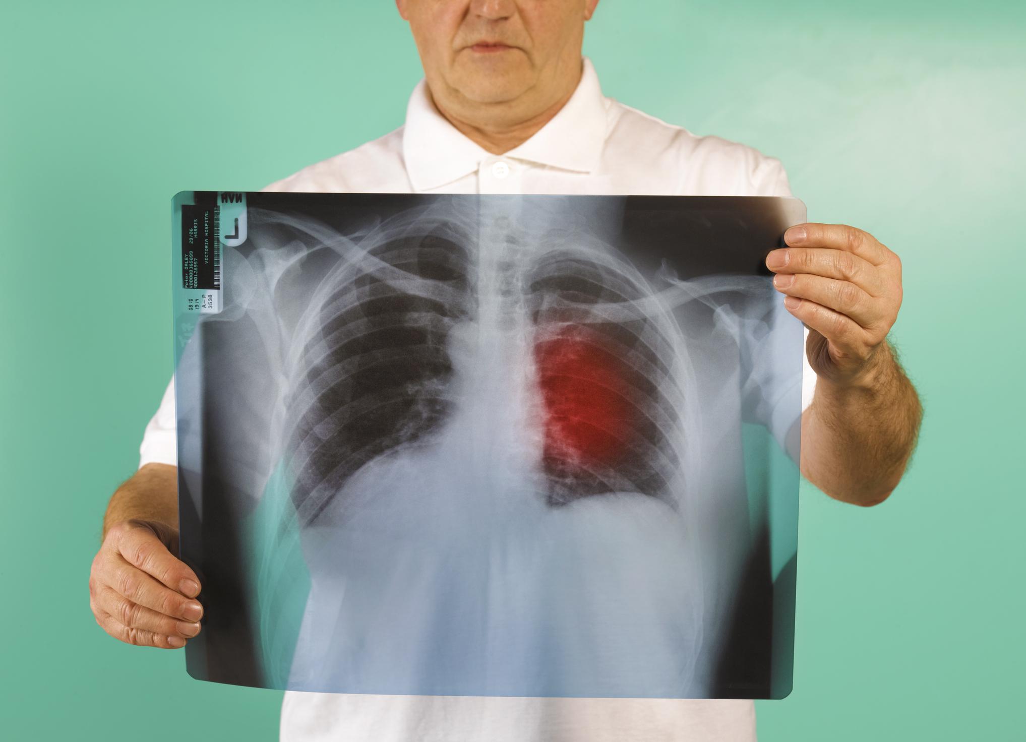Singura metodă de prevenție a cancerului la sân și pulmonar, în cazul femeilor. Ce presupune