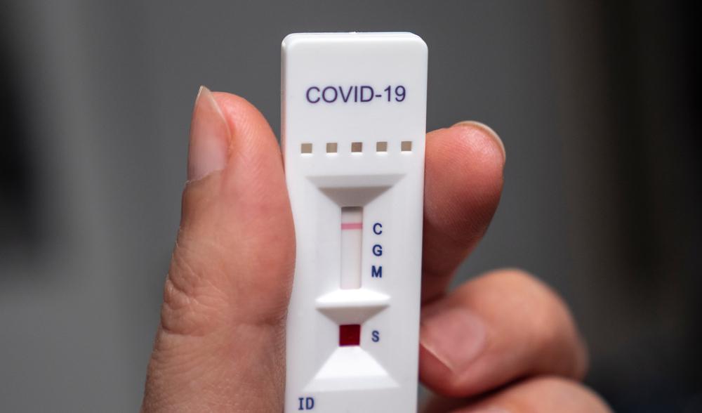 Studiu: Doar unul din două cazuri pozitive de COVID confirmate cu RT-PCR este identificat şi prin test rapid