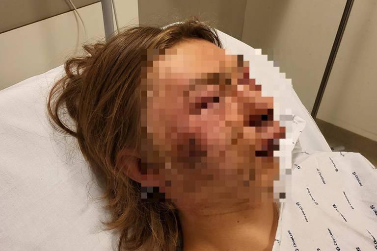 Adolescent desfigurat pe stradă, în Belgia, pentru că se întâlnea cu o fată cecenă. Reacția tatălui său