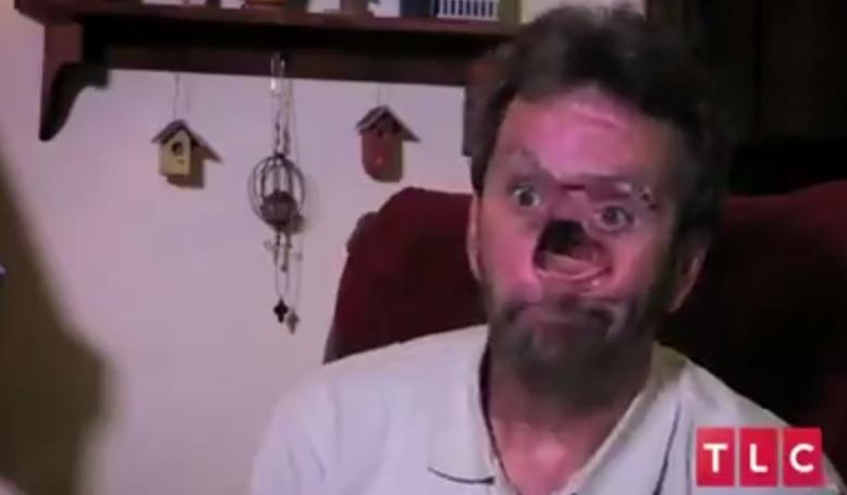 A reusit sa isi sarute din nou sotia dupa 10 ani. Cum arata barbatul cu chipul mutilat de cancer dupa reconstructia faciala