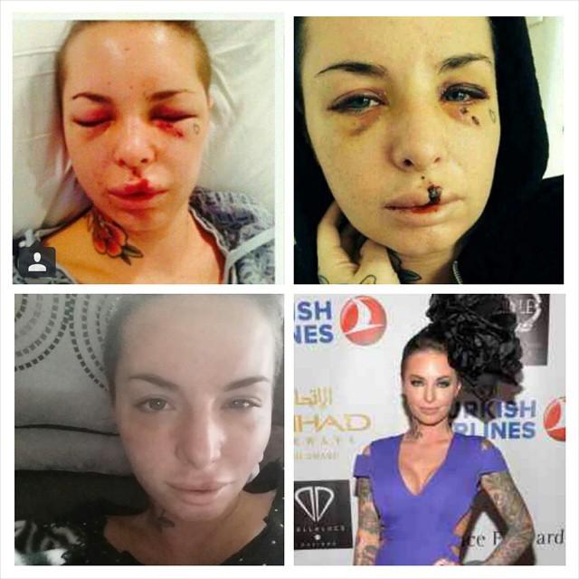 War Machine, luptatorul UFC care a batut-o pe actrita de filme pentru adulti Christy Mack, ar putea primi inchisoare pe viata