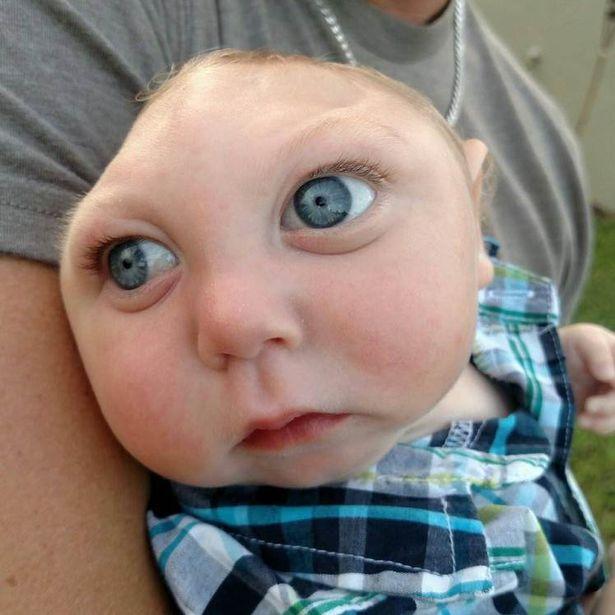 Bebelusul nascut cu jumatate de craniu continua sa uimeasca lumea medicala. Care sunt primele cuvinte rostite de micut: VIDEO