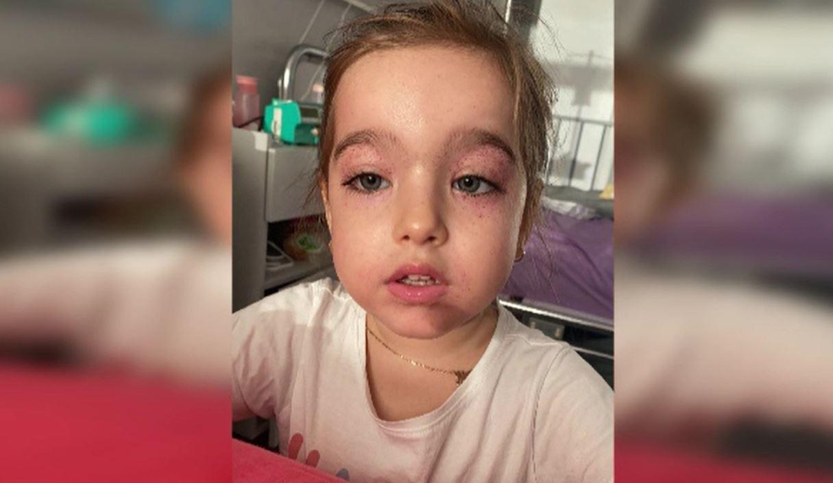 Situație critică pentru o fetiță de trei ani, diagnosticată cu leucemie.
