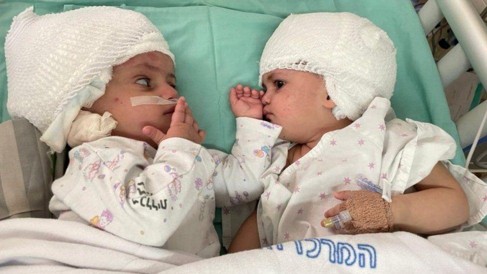 Două fete gemene siameze au fost separate în urma unei operații extrem de rară în Israel