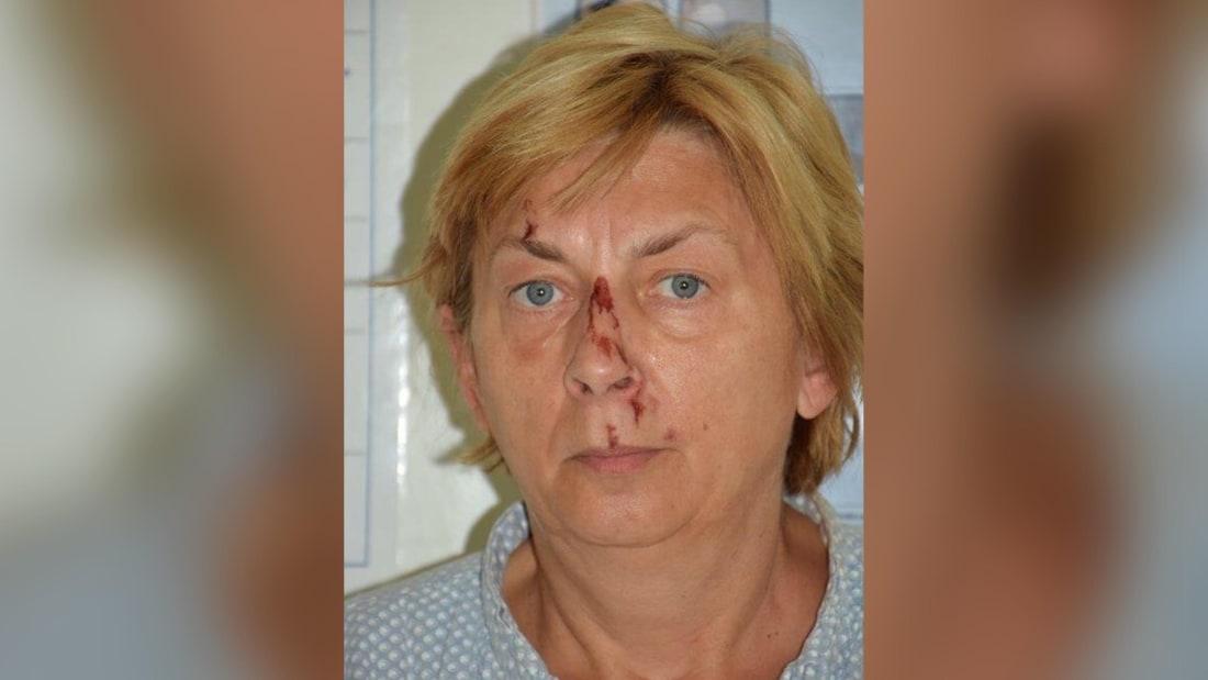 S-a aflat cine este femeia misterioasă, găsită în Croația, care nu-și știa numele și nu avea acte la ea