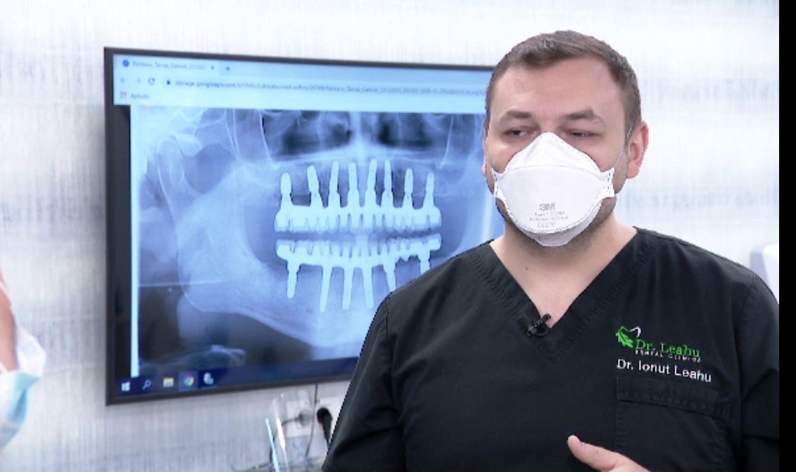 Implanturile, modalitatea eficientă prin care oamenii își recapătă dantura, distrusă de fumat